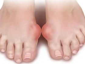 食疗治愈痛风排出尿酸最好的蔬菜,竟是这两种!只服用两周,脚就完全不疼了