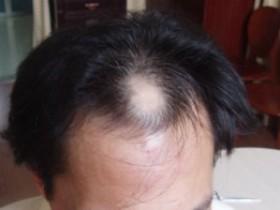 脱发可能是五种病导致