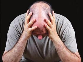 别让头发毛囊提早老去 3点关键防掉发