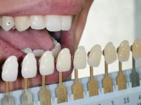 7种获得白牙的方法