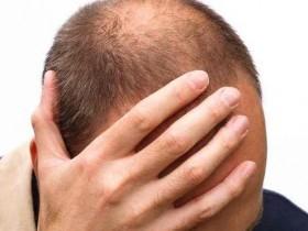白发多、狂掉发?必吃这些黑色食物护发