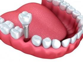 根管治疗后为何又蛀牙?
