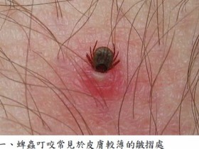 春天小心蜱虫叮咬 6锦囊预防