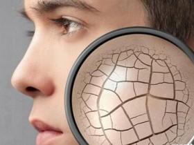 肌肤极度干燥时该怎么办?