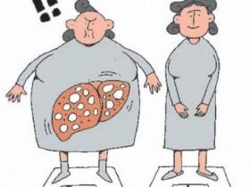 爱吃甜食、水果、不运动,都是危险群 爱吃水果的瘦子,也会有脂肪肝