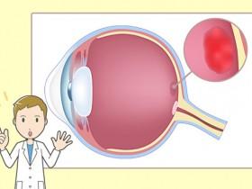 视物扭曲小心黄斑部病变中医养眼治疗有妙招