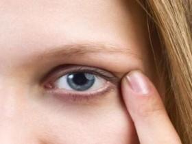 眼周出现干纹细纹该怎么办?