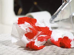 流鼻血的几种原因!不寻常流鼻血要当心