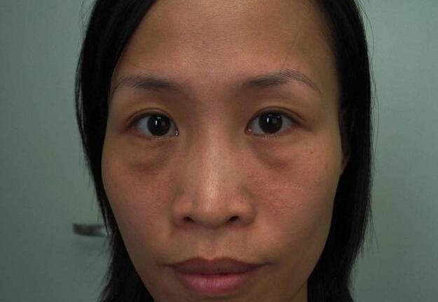 女人有眼袋不要慌,每天定时吃点不贵的它,眼袋淡了皮肤也好了