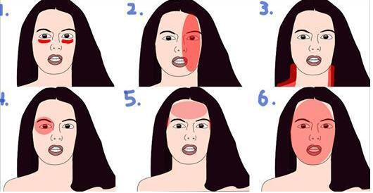 一秒找出头痛原因 这里头痛,竟是中风前兆