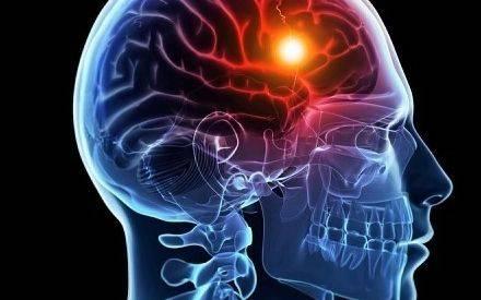 脑中风急救有新疗法 动脉取栓降低后遗症