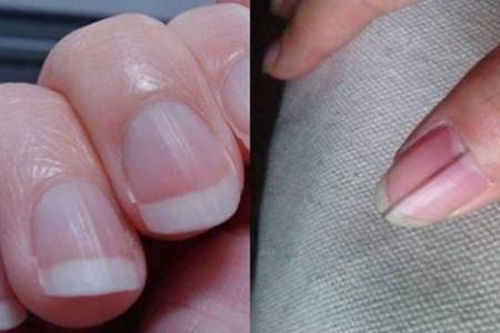 手指甲上有竖纹是怎么回事?表示你的身体出了问题